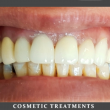 Comsetic Treatments
