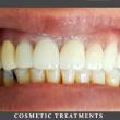 Comsetic Treatments